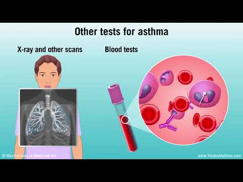 Diagnosing Asthma: Mild, Moderate, And Severe