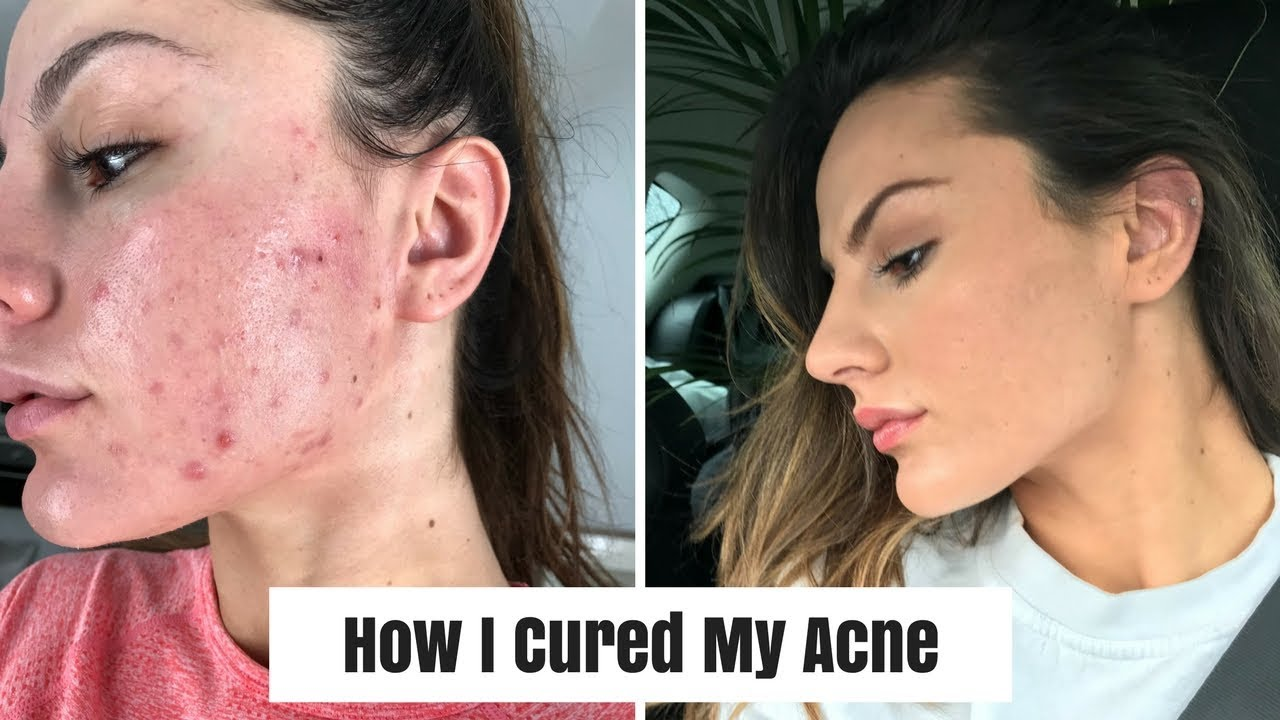 HOW I CURED MY ACNE | Skin care & REAL results