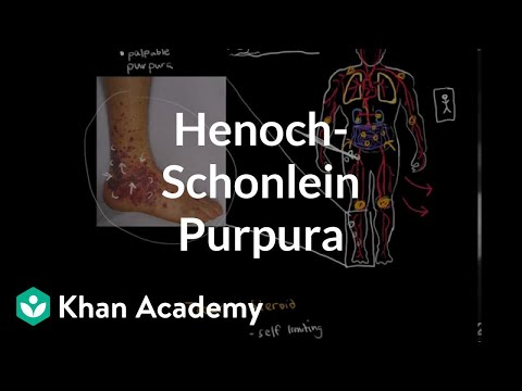 Henoch-Schonlein purpura | Circulatory System and Disease | NCLEX-RN | Khan Academy