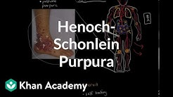 hqdefault - Henoch-schonlein Purpura Kidney Involvement