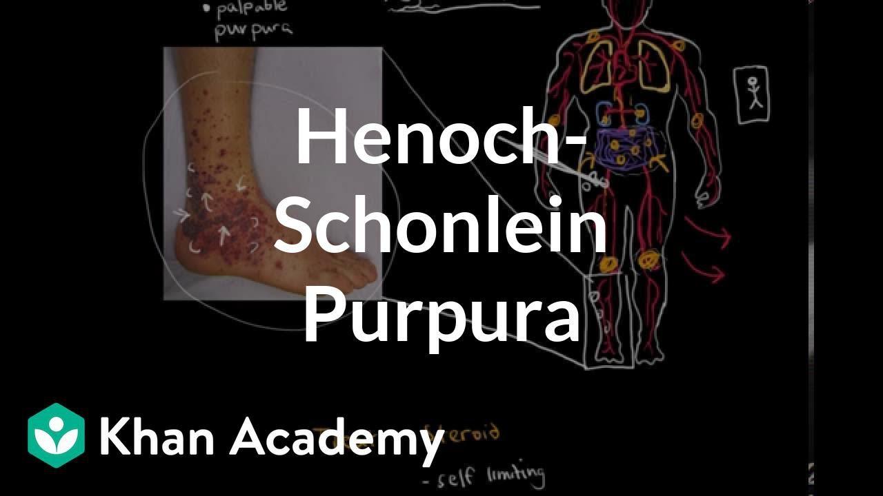 4a84e7bd4289c7 Henoch-Schonlein purpura (video) | Khan Academy