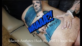 Baixar Edwards Aesthetics | Back Wax PART II | Starpil BLUE