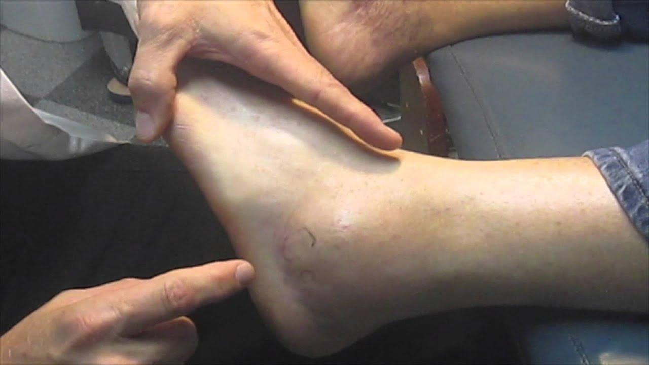 foot neuritis treatment