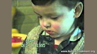 Autism Therapy: Michael Fully Recovers From Autism with The Son-Rise Program
