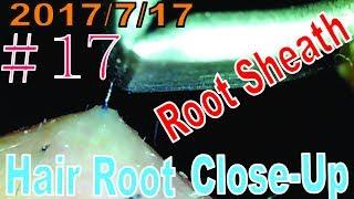 Hair Root / Root Sheath Close Up #17【No Root Sheath...】