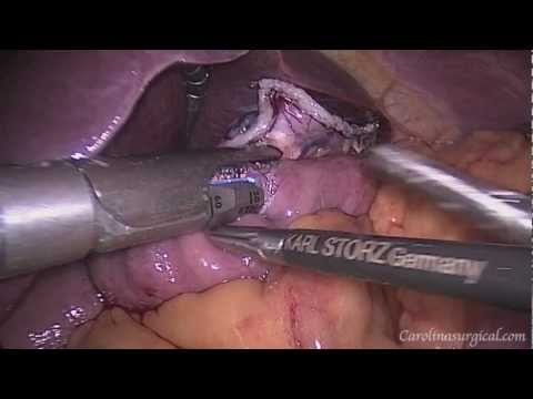Laparoscopic Roux-en-Y Gastric Bypass - Live Surgery