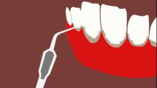 Ультразвуковая чистка зубов(Ультразвуковая чистка зубов -- современный и безопасный способ чистки зубов специальным аппаратом (ультра..., 2010-10-06T10:50:43.000Z)