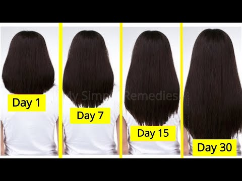 Leonor greyl de la caída de los cabello