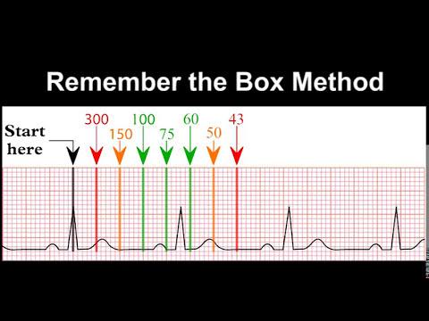 ECG Rhythm Recognition Practice - Test 1
