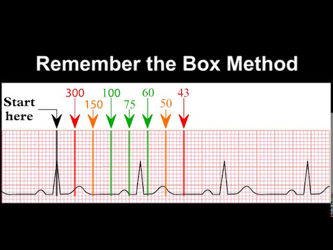 ECG Rhythm Recognition Practice - Test 1