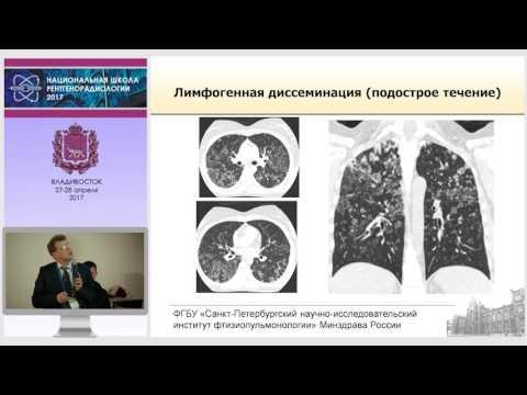 П.В. Гаврилов - Диссеминированный туберкулез легких: скиалогическая картина