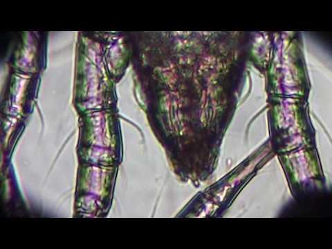 Flour Mites Acarus siro Under Microscope X 200 Big Monster Mites!