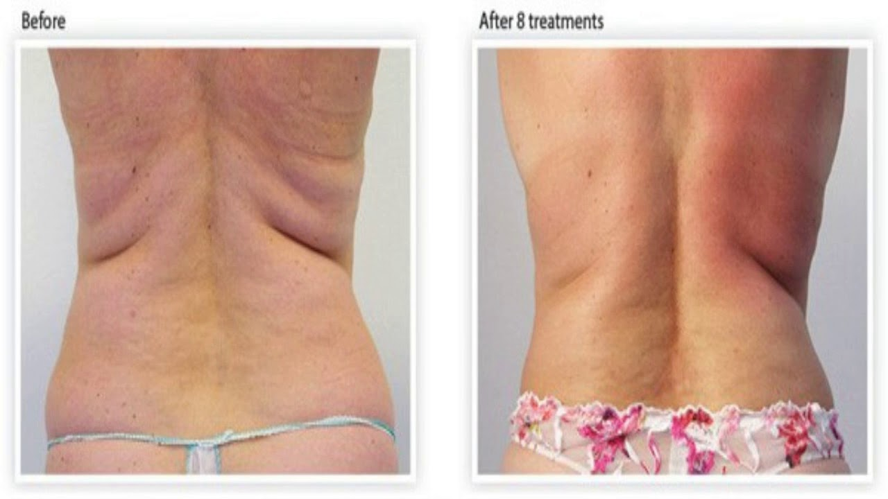 bio oil cellulite before and after