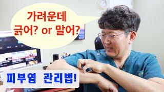 질환 리뷰 #21: 피부소양증 피부관리 방법 - 연고관…