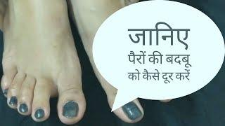 पैरों की बदबू दूर करने के घरेलू उपाय - Smelly Feet Home Remedies | Hello Friend TV