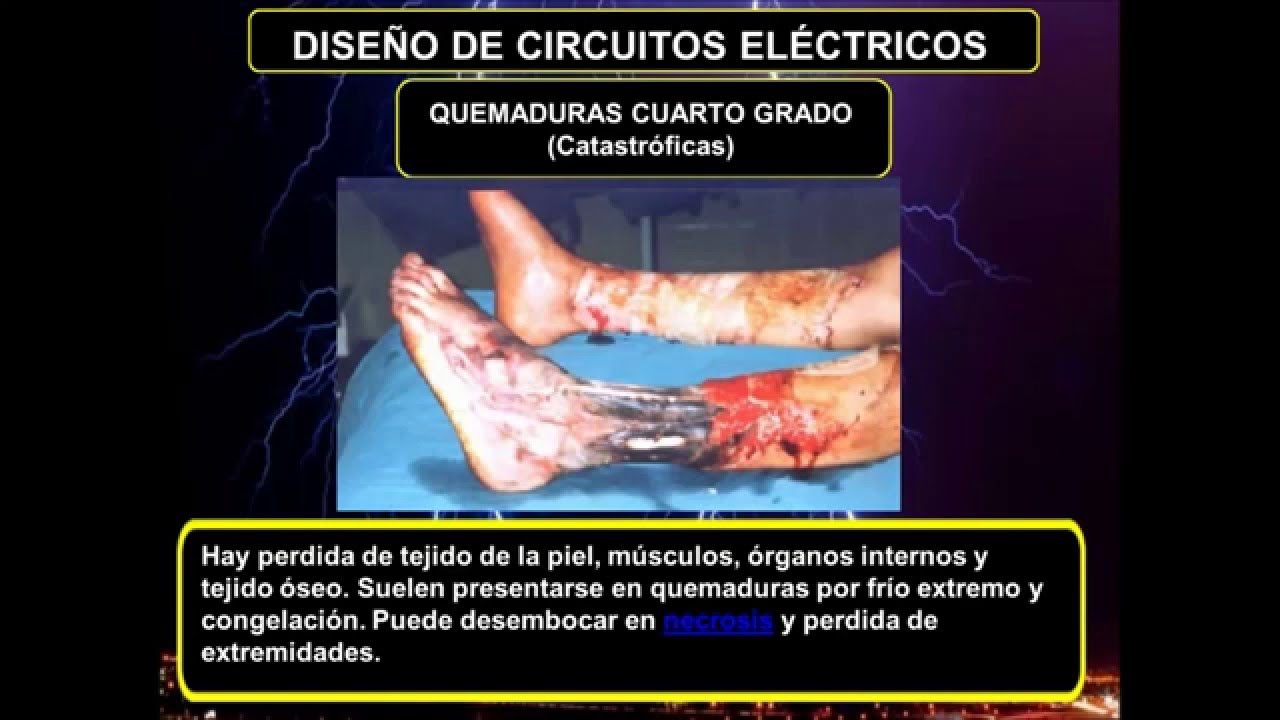 RIESGOS EN EL TALLER DE ELECTRICIDAD - YouTube