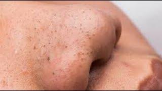 Removal blackheads on nose | Loan  Nguyen