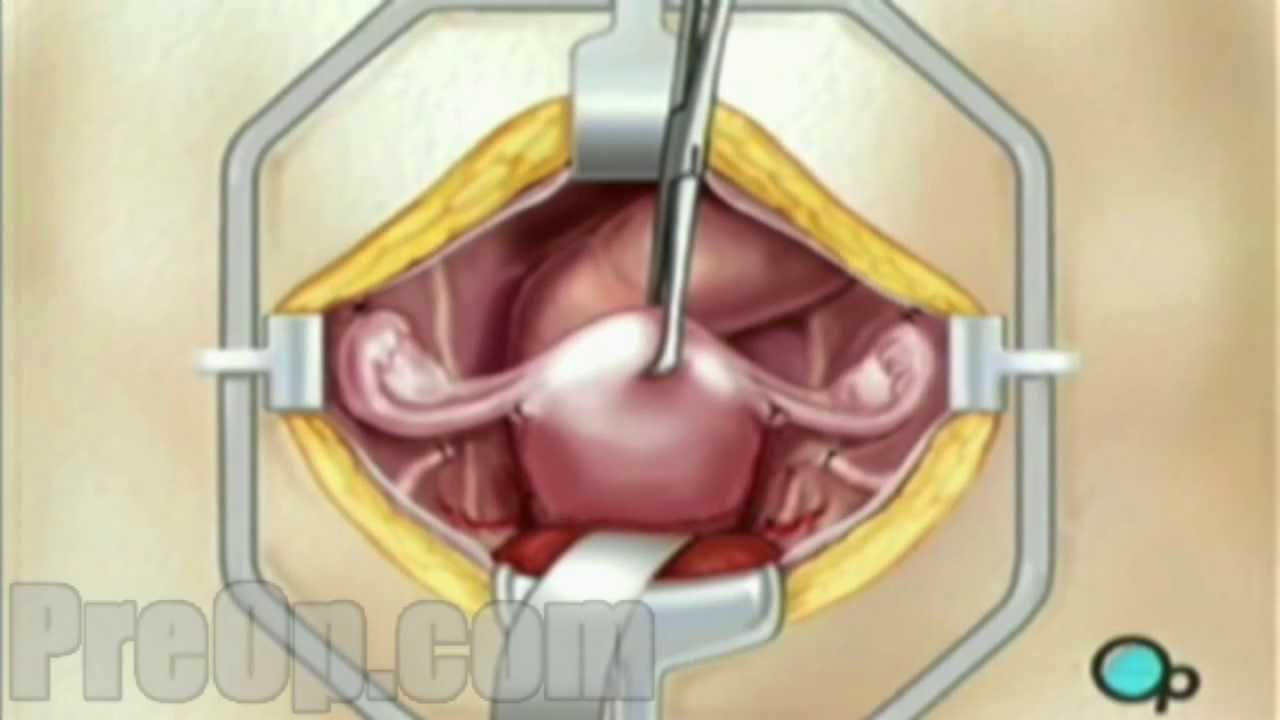 Hysterectomy Removal Of Uterus Ovaries And Fallopian Tubes Surgery