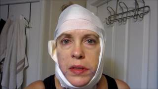 Surgery Day Lower Face Neck Lift June