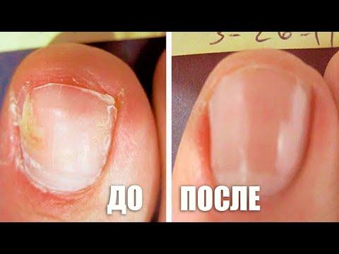 Как быстро избавиться от ногтевого грибка. Народное средство