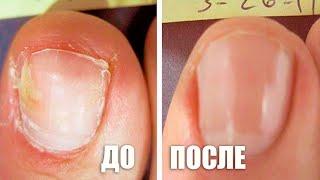 Как правильно и безопасно избавиться от ногтевого грибка // д-р Лео