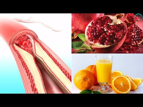 Best 20 Foods To Cleanse The Arteries And Protect The Heart. A Healthy Diet Is Key For Long Life!