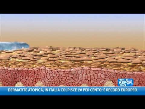 Dermatite atopica, in italia colpito l'8 per cento: è record europeo