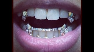 G I R L S`  wearing FRONTS (grills )