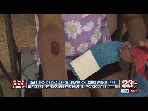 Salt and ice challenge leaves children with burns