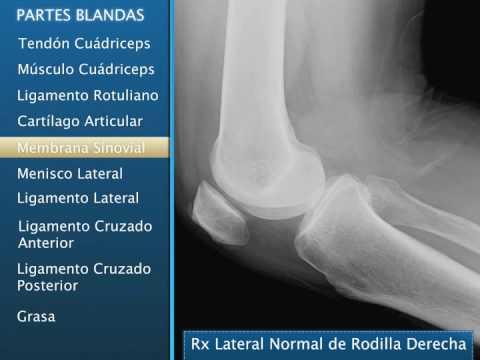 radiografia para desgaste de rodilla
