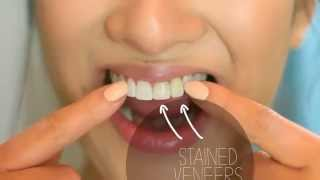 Braces and Teeth Whitening Johannesburg - Sandton and Bryanston Orthodontist