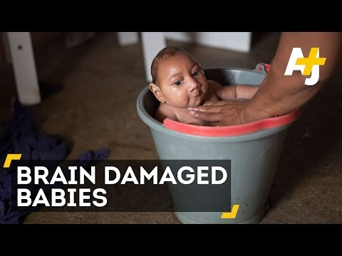 "Health Tips: Zika virus: More babies born with birth defects and Brain Damage ""Watch The videos"""