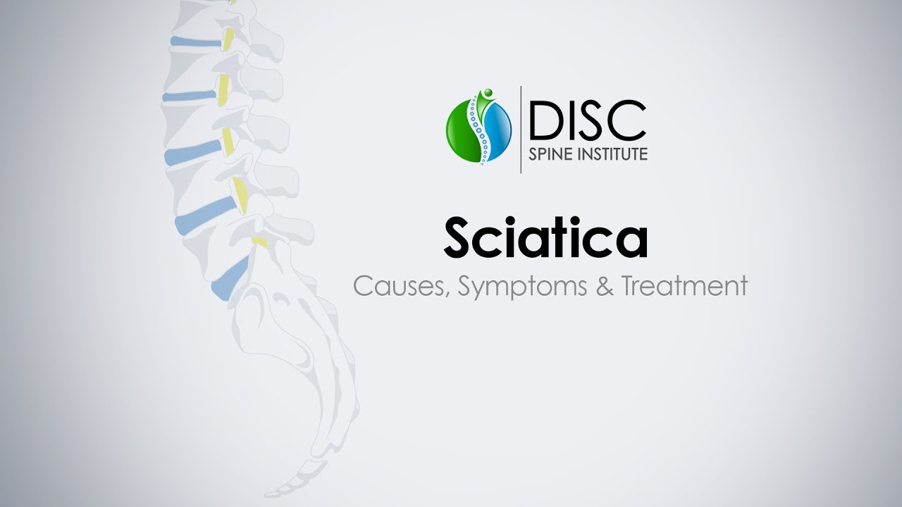 Sciatica Causes Symptoms Treatments
