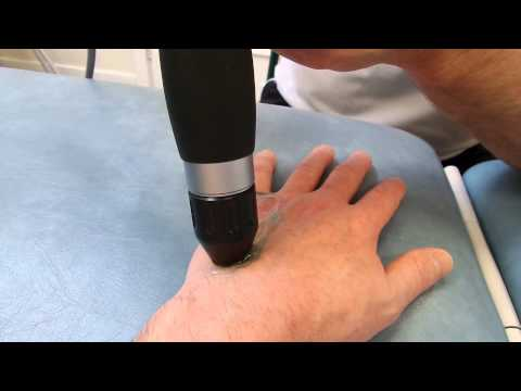 Hand Treatment (5th session) Gyna Shockmaster 300 (narrated by patient)