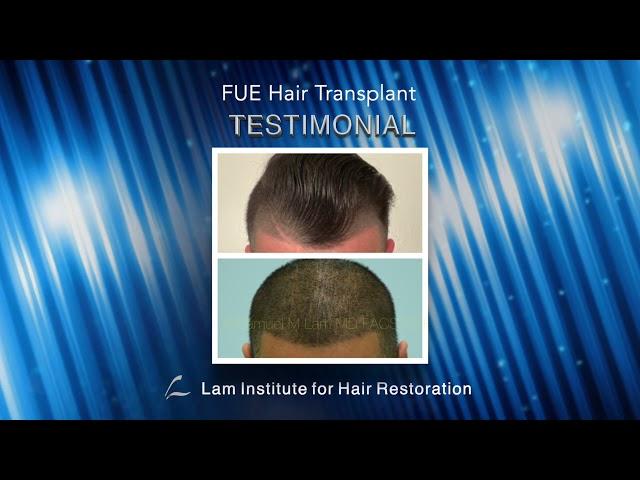 Dallas FUE Hair Transplant Testimonial with Photos