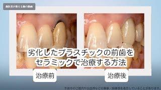 市販 歯茎の腫れ 抗生物質 フロモックス