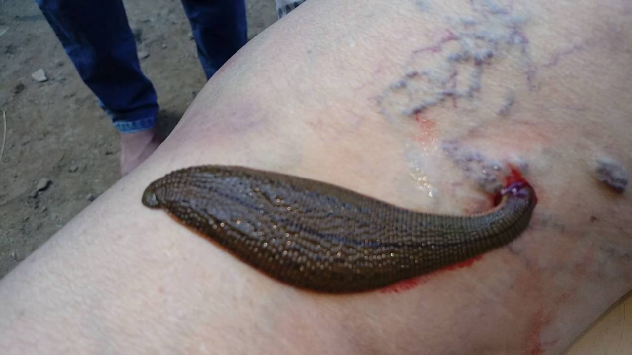 leech treatment kakinada nadipathy youtube