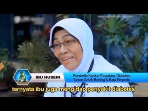 Testimoni JM Therapy Malang, Indonesia