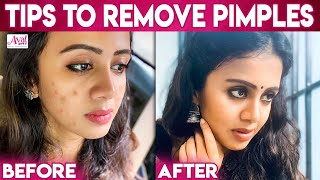 How To Remove Pimples – VJ Anjana | Acne, Dark Spots | Kayal Chandran, Clear Marks