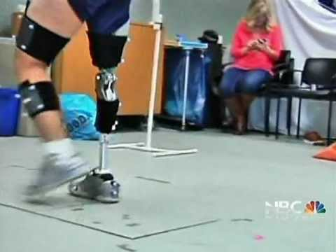 NBC Bay Area News Covers UCSF's Training Program for Amputee Athletes – 5 pm