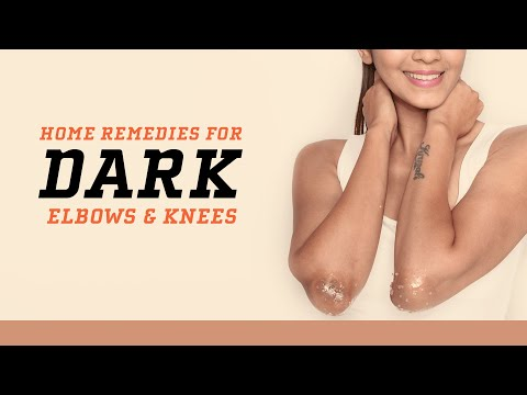 How To Remove Dark Patches On Elbows And Knees | Home Remedies