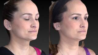 Rhinoplasty 3D Before and After-11