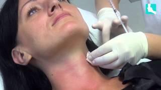 Mezoterapia igłowa, medycyna estetyczna, Elbląg, dermatolog Danuta Dąbrowska