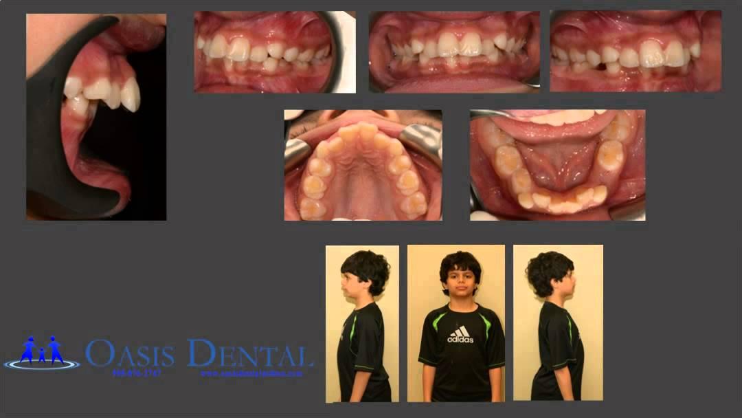 Non-Extraction Functinal Jaw Orthodontic (Braces) Treatment - Overbite / Deep Bite