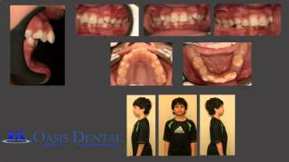 Non-Extraction Functinal Jaw Orthodontic (Braces) Treatment - Overbite / Deep Bite Thumbnail
