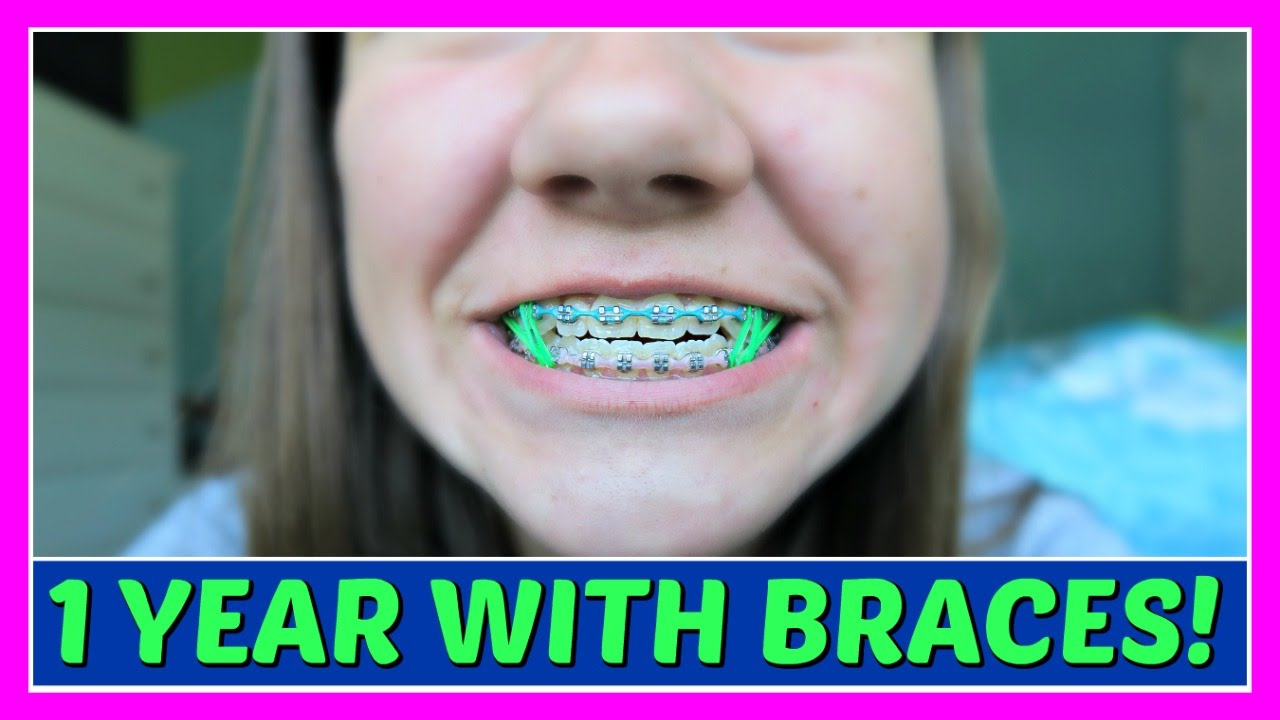 how to take off your braces
