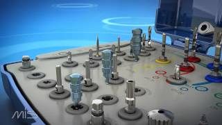 Набор для установки имплантатов MIS.(Анонс нового набора для установки имплантатов MIS., 2012-11-26T07:53:36.000Z)
