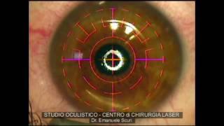 PRK - Correzione della miopia con LASER ad eccimeri