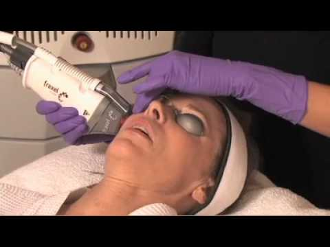 Benefits of Fractionated CO2 Laser Skin Resurfacing