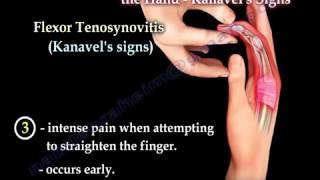 Flexor Tenosynovitis Of The Hand Kanavel's Signs